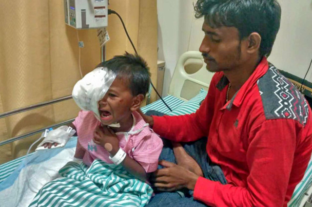 Help this 4 year old girl Puthul Kumari Paswanwho is the daughter of a farmer is now diagnosed with a severe eye cancer called Neuroblastoma in India. Your Donation will save this precoius life.