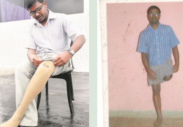 Help Babu from Bengaluru who has Requested monetary support for replacement of his knee joint. Your Generous help will be a great help to Babu.