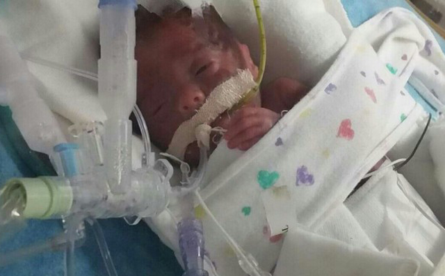 Help Dominick Joseph Gorton for his  Perforated Bowel Treatment. He is a rainbow baby, born after 7 miscarriages. Dominick was born severely premature by emergency C-section.